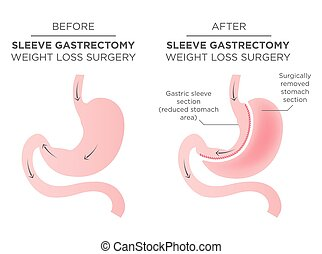 mave, 1/4, resulter, kirurgi, removed., bariatric, hæfte
